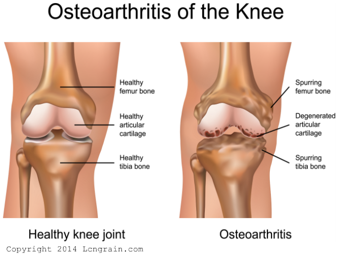Knee-Pain-Osteoarthritis-of-knee_660-X500